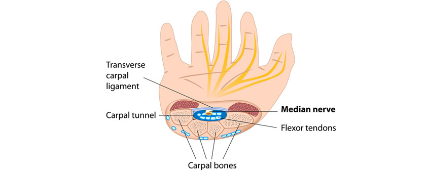 Carpal Tunnel Syndrome Treatment | California Chiropractic ...
