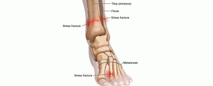 Stress Fracture Treatment California Chiropractic Dubai